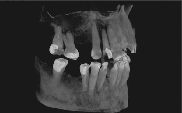 tomografia_stomatologiczna_miniatura